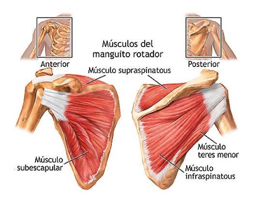 tendinitis de hombro remedios caseros
